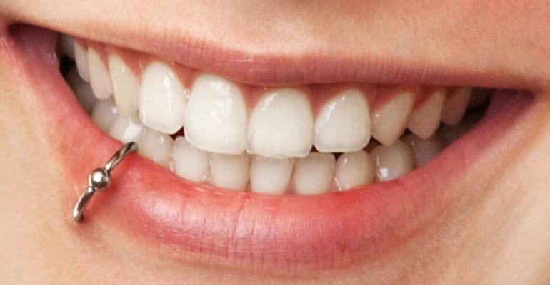 peircings-oral-health