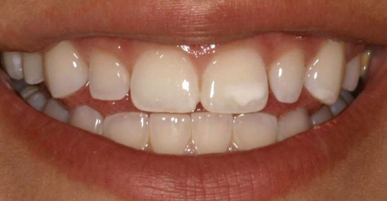 restoring-demineralized-tooth-enamel