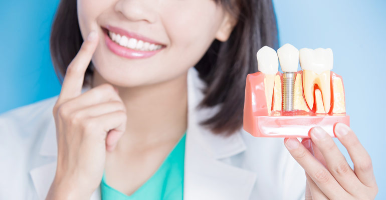 bone loss dental implants solutions toronto