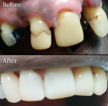 cosmetic dentisry before after photo
