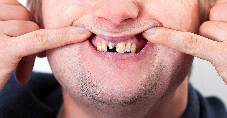 Dental Implant or Crown Loose Steps