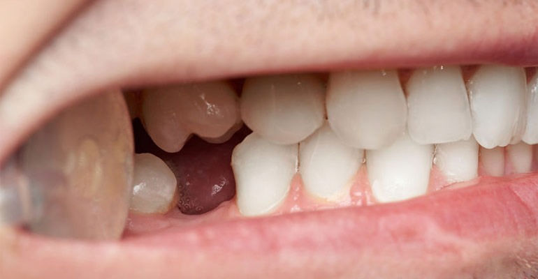 importance of replacing missing teeth