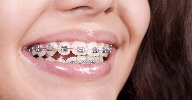 keeping-your-teeth-healthy-while-you-have-braces