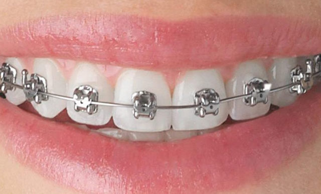 orthodontic treatment toronto