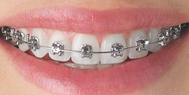 orthodontic treatment toronto