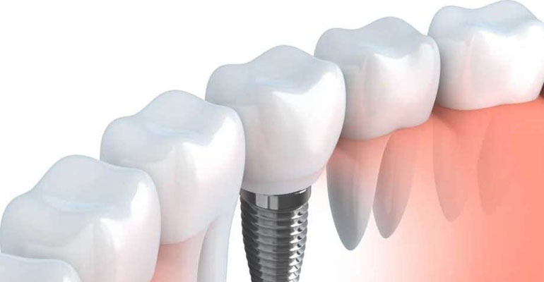 partial-dentures-or-denture-implants-which-one-is-best-for-me