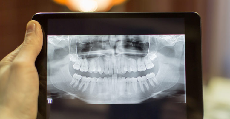 tooth extraction reasons