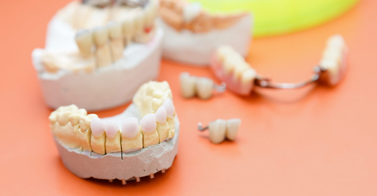 transitioning from dentures to dental implants