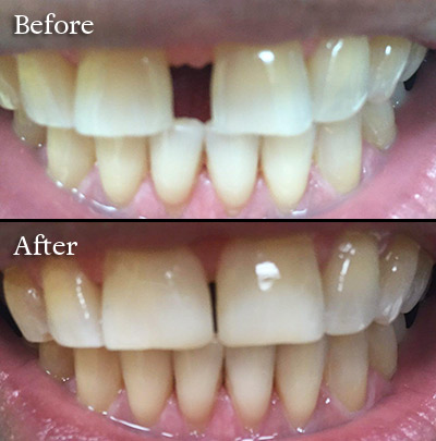 veneer before after photo