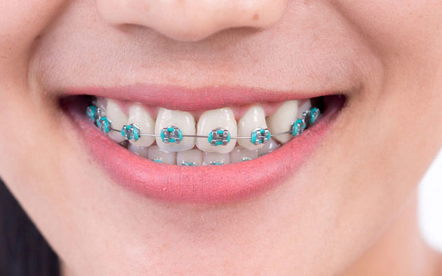 what-should-you-bracket-wire-breaks-on-braces