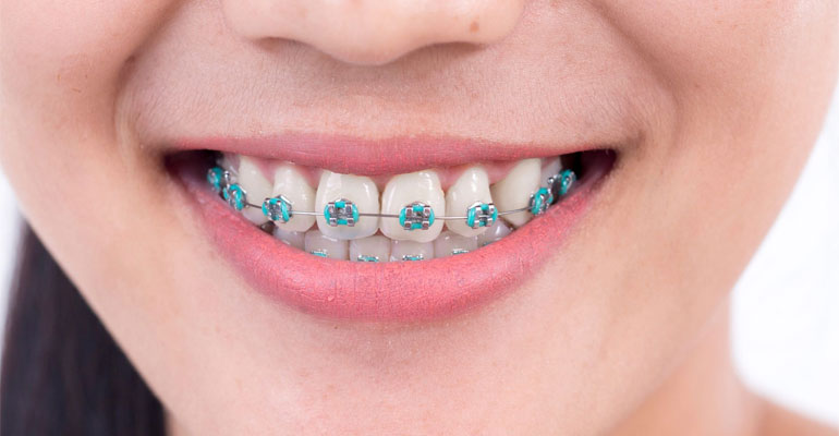what-should-you-bracket-wire-breaks-on-braces